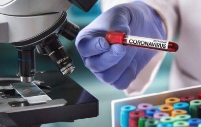 Coronavirus: Massen-Bluttest startet – Naturheilkunde & Naturheilverfahren Fachportal