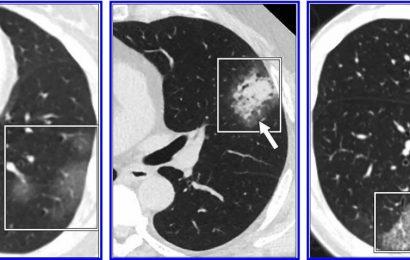 AJR überprüfung der COVID-19 Studien warnt vor Brust-CT für die Diagnose coronavirus