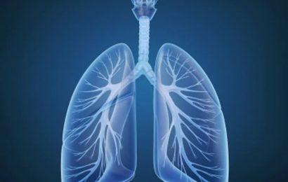 COVID-19 Sterberate hoch für Patienten mit thoracic-Krebs