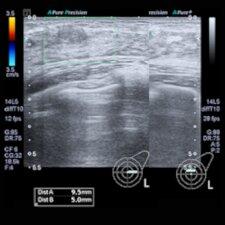 Forscher zerstören Krebszellen mit Ultraschallwellen-Behandlung
