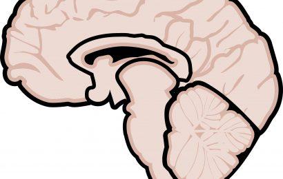 Experten klären Subtypen der multiplen Sklerose auf die Verbesserung der Versorgung und klinischen Studien