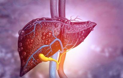 Fettleber: Erste medikamentöse Therapie entdeckt – Naturheilkunde & Naturheilverfahren Fachportal