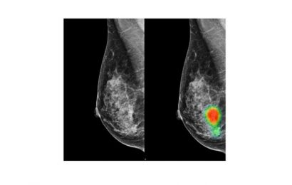 Lunit AI-Lösung für Brust-Krebs-Erkennung erhält CE-Zertifizierung