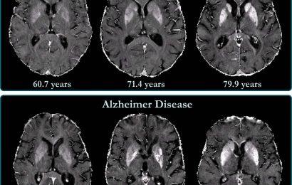 Brain iron accumulation verbunden mit einer Abnahme der kognitiven Fähigkeiten bei Alzheimer-Patienten