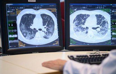 Vollständige Genesung nicht sicher: So geht es Patienten nach Covid-19-Erkrankung