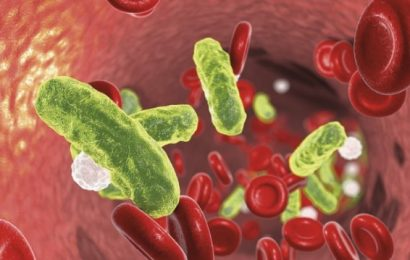 Superinfektionsrisiko bei COVID-19 in der Frühphase wohl gering