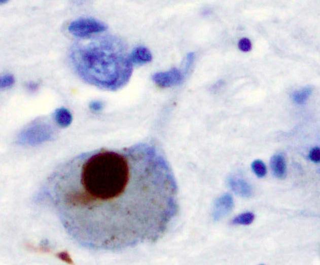 Ein Drittel der Menschen mit Parkinson haben erfahrene erhöhte Symptome bei lockdown