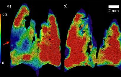 Welt-erste-Technologie neues Leben einhaucht, zystische Fibrose-Erkennung und-Behandlung