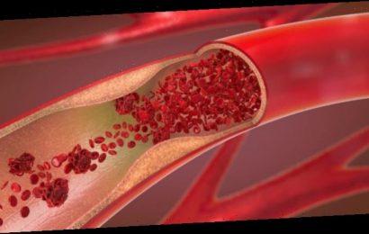 Astra-Zeneca-Impfstoff: Zusammenhang mit Thrombose und Lungenembolie – Heilpraxis